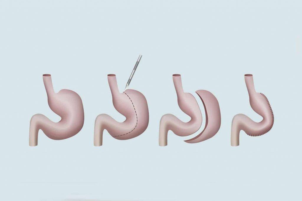 mide kucultme ameliyati olumlu ve olumsuz yanlari