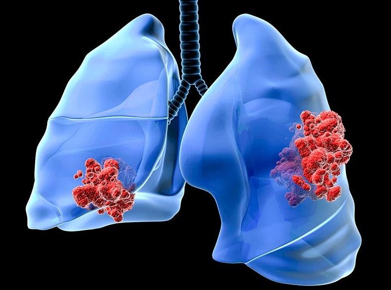 akciger kanseri genel semptomlar