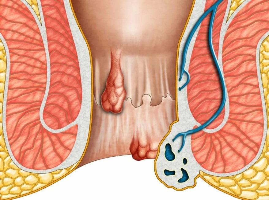 hemoroid ameliyati ne kadar sonra iyilesir