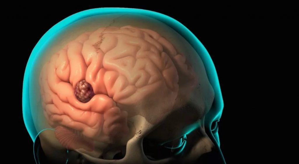 kac cesitten olusur beyin tumoru