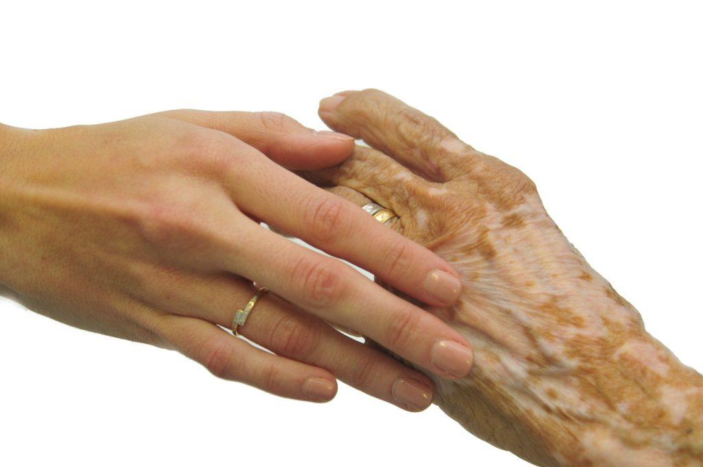 vitiligo tani koyma asamalari