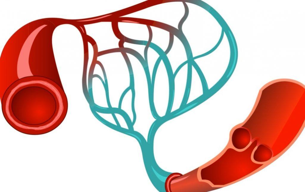 kac seanstir kilcal damar tedavisi