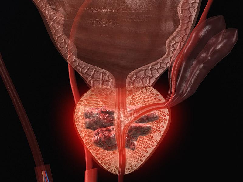 prostat kanseri tanimlandirilmasi