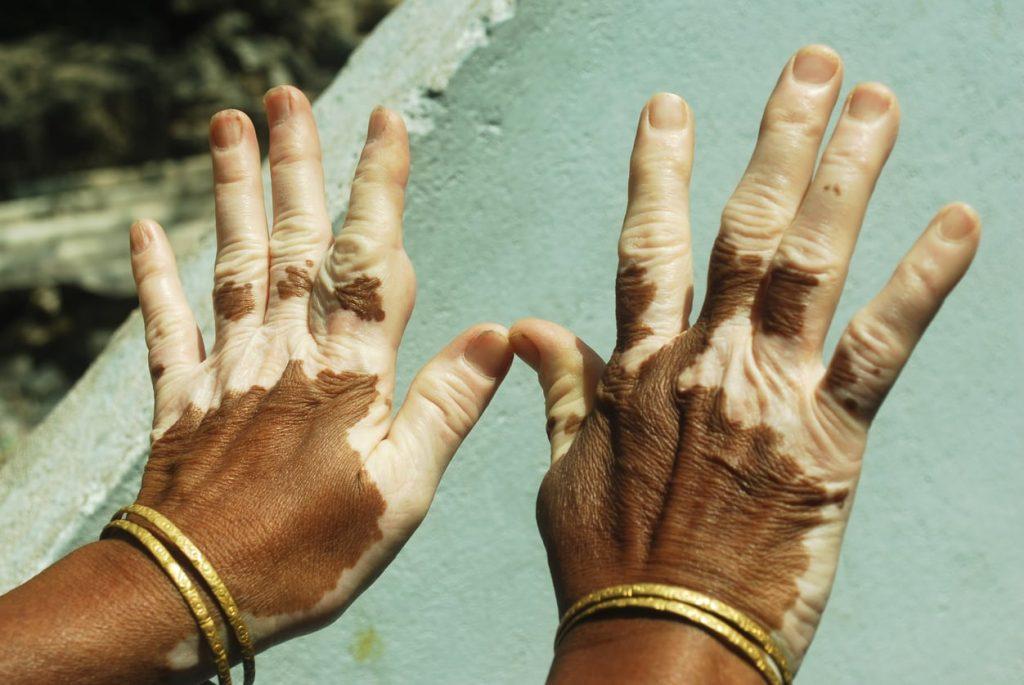 vitiligo gostergeleri nelerdir