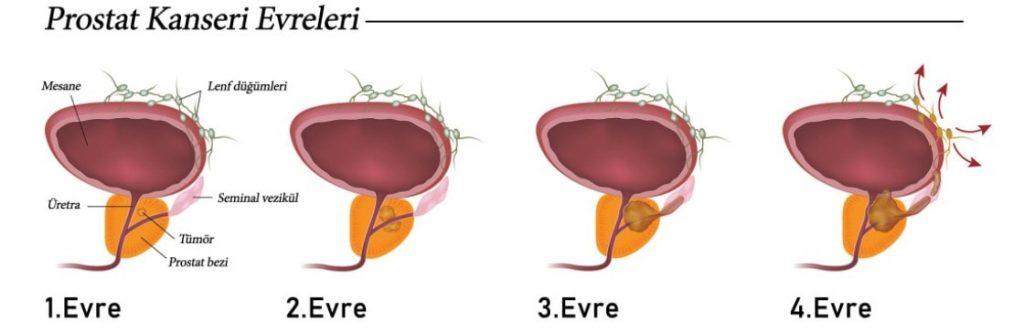prostat teshisi 4. evre