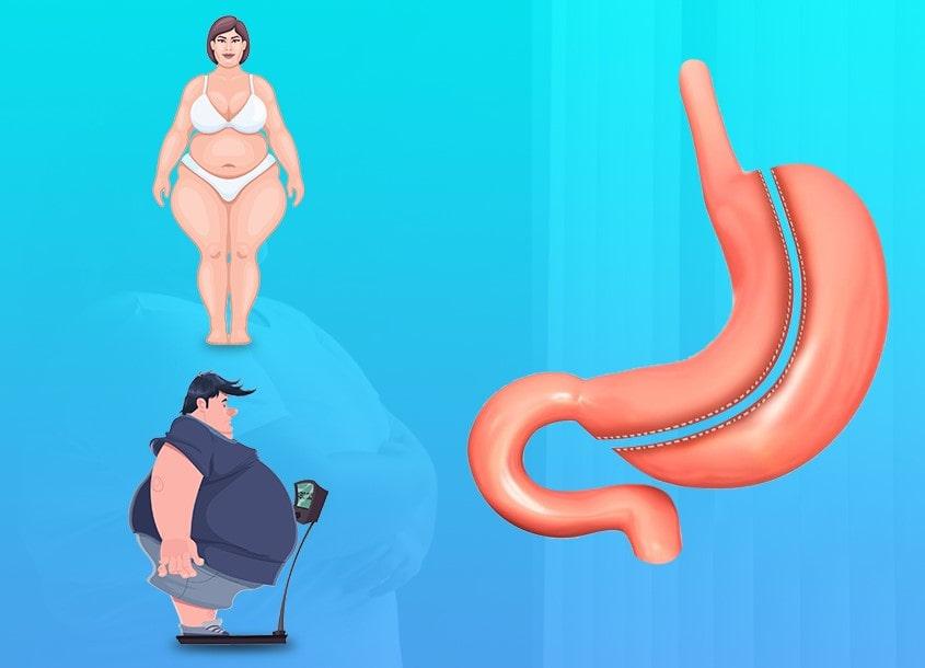 tup mide ameliyati sonrasi